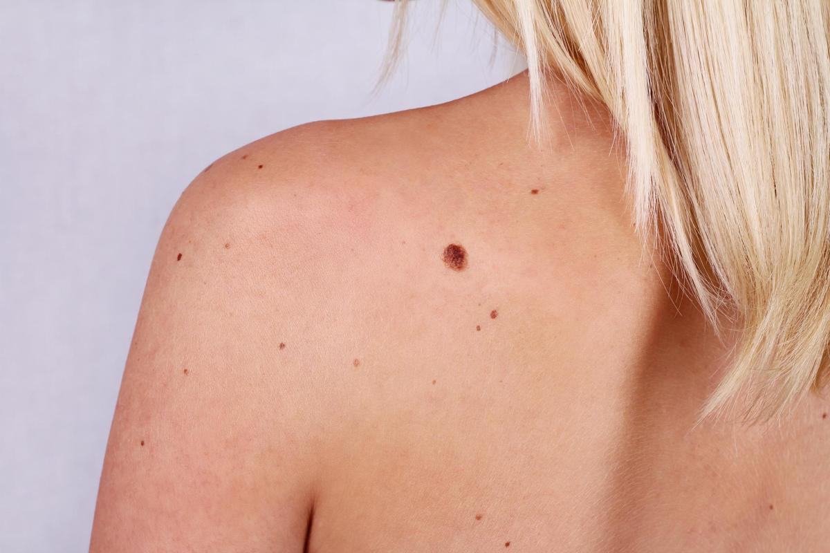 Pictures of Skin Tags, Cysts, Lumps and Bumps And When To Call A Doctor